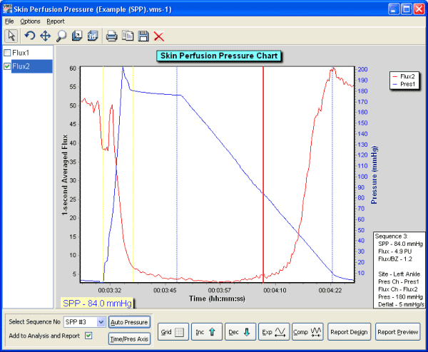moorVMS-PC SPP analysis screen shot