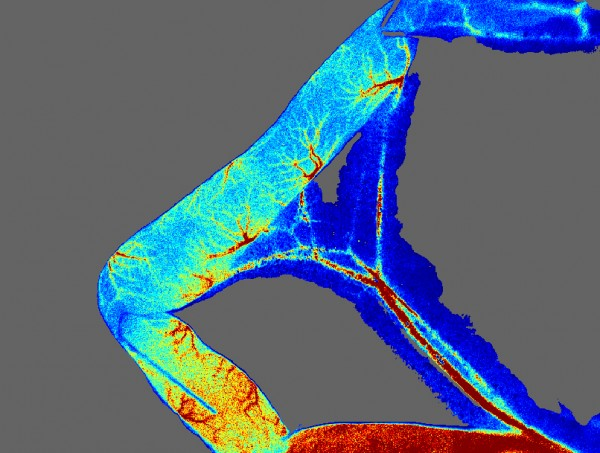 Image submitted by Prof Michael Hill, Missouri, USA – high resolution laser speckle images of mesenteric vessels.