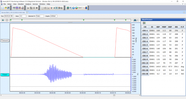 moorLAB-NIBP PC Live Recording Screenshot
