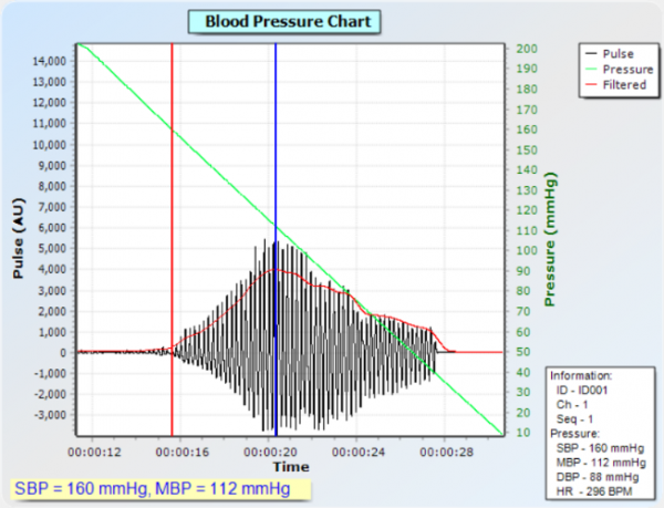 moorLAB-NIBP PC Blood Pressure Chart